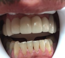 After Dental Implants