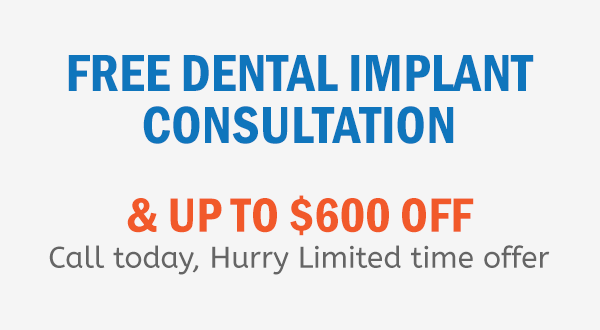 Free Dental Implant Consultation Up To $600 Off