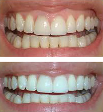 Miami Teeth Whitening
